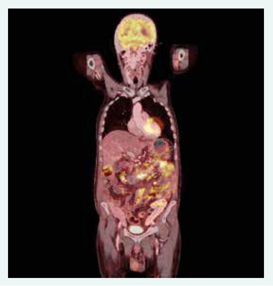 1. PET/CT koronární řez. Akumulace radiofarmaka v tenkých kličkách, tračníku a metabolicky aktivní uzliny v retroperitoneu, mezenteriu a mediastinu. Z archivu autorky