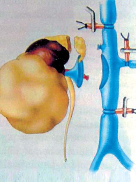 Tumor pravé ledviny s trombem, hladina II (resekce DDŽ) [24].