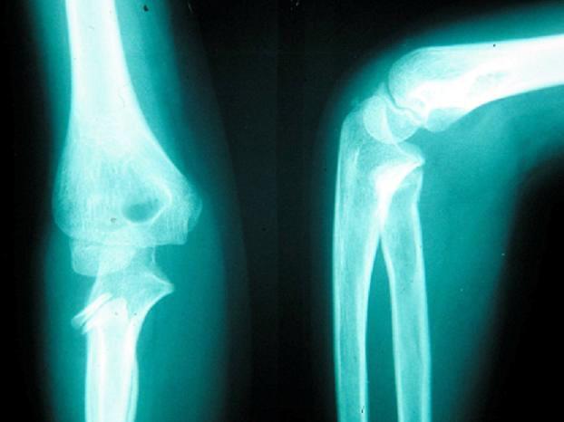 RTG lakťového kĺbu v dvoch projekciách po úraze