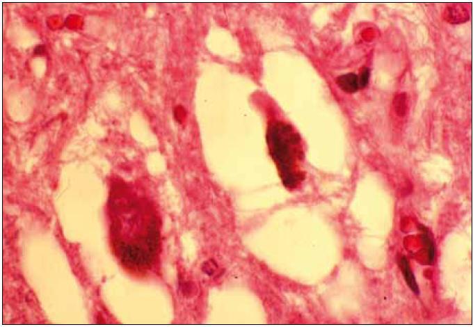 Regresivní změny melanoticky pigmentovaných neuronů v substantia nigra. Barvení hematoxilin eozin.