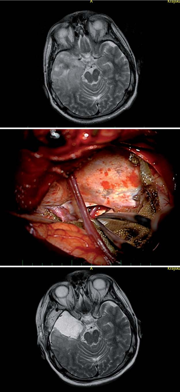 Transkortikální transtemporální přístup (vč. temporální resekce nádoru).