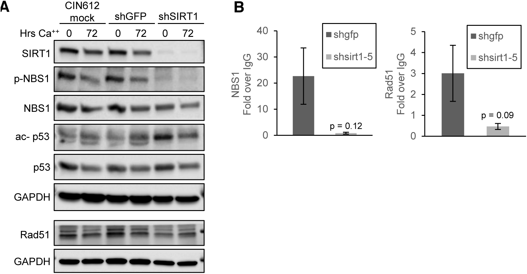 SIRT1 knockdown diminishes binding of DNA damage factors to the HPV URR.