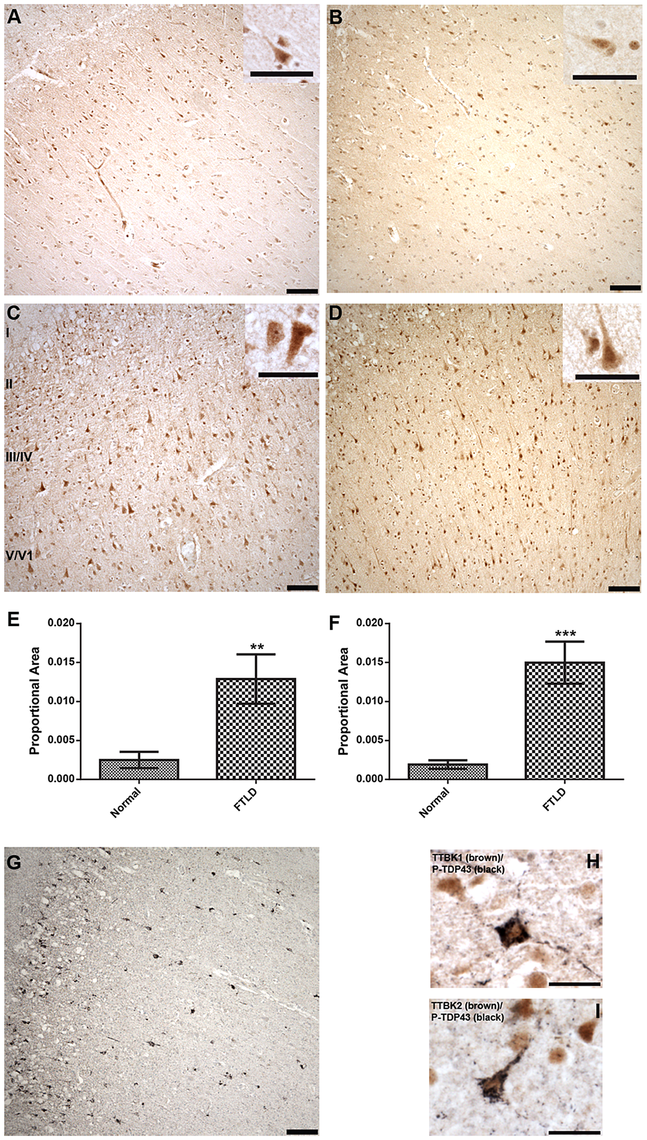 Upregulated Tau tubulin kinases are also co-expressed with phospho-TDP-43 pathology.