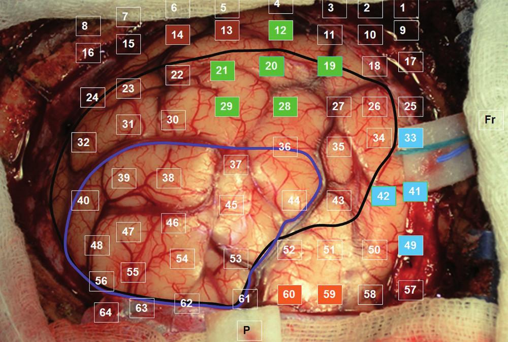 Fotografie odhaleného kortexu se zaznamenáním polohy jednotlivých svodů: tmavě modrá – rozsah parciální resekce; černá – kortikální hranice tumoru dle navigace; barevné označení elektrod v oblastech s pozitivními odpověďmi na stimulaci (odpovídá obr. 1).