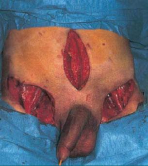 Ingvinální a pánevní lymfadenektomie.
