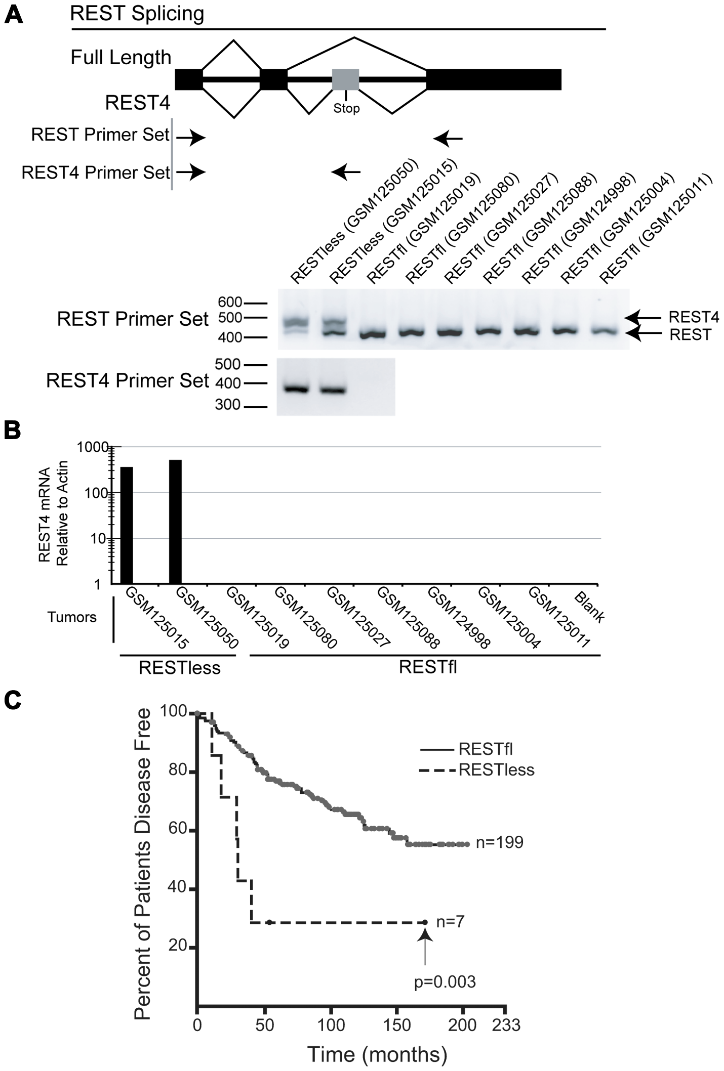 REST–less breast cancer tumors display high levels of REST4 splicing and poor prognosis.