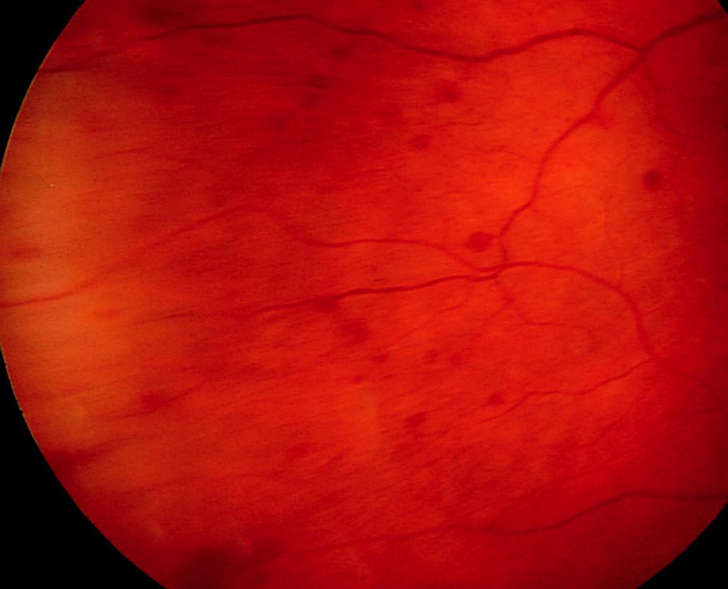 Morbus Waldenström manifestující se v oku 56letého pacienta mnohočetnými retinálními hemoragiemi sítnicové periferie