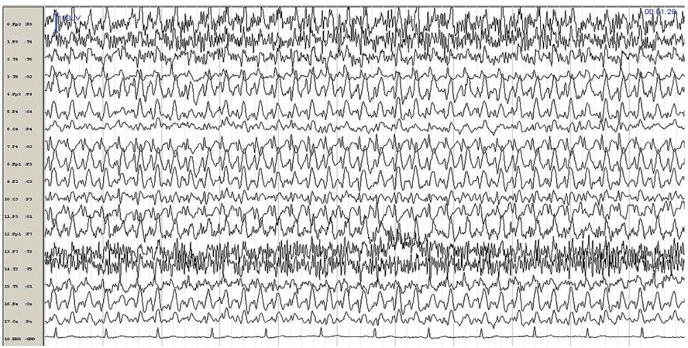 EEG záznam pořízený během amentního stavu, kdy pacientka reagovala na vnější podněty, nicméně její reakce byly zatíženy chybami a někdy byly zcela neadekvátní. Na EEG kontinuální generalizované symetrické synchronní SW komplexy 3–4 Hz.