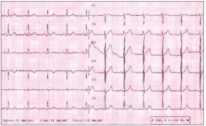 Obr. 3b. EKG-nález za 2 mesiace.