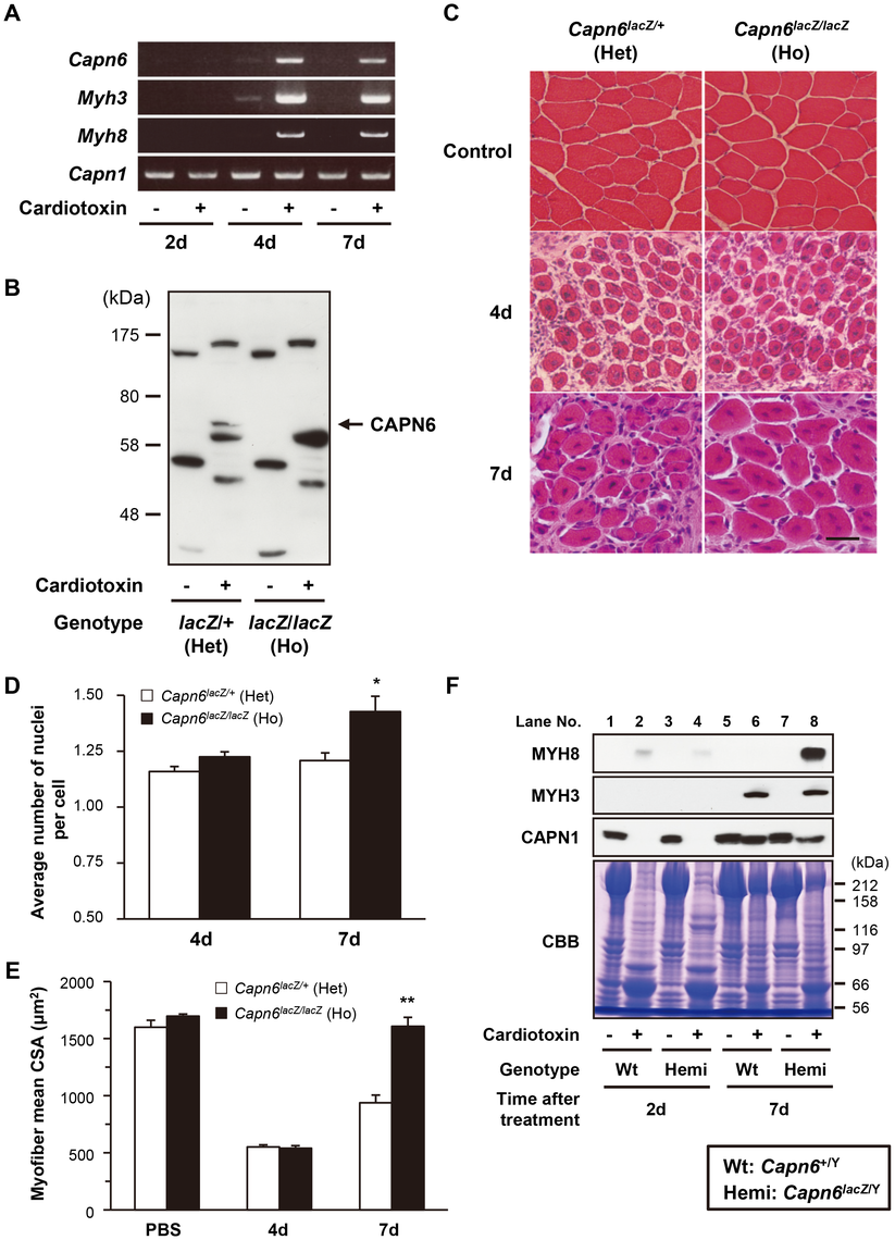 CAPN6 is expressed in regenerating skeletal muscles and suppresses regeneration.