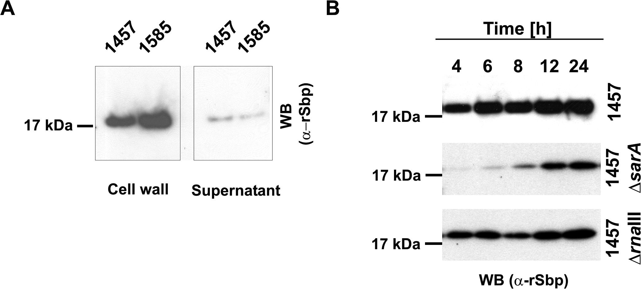 Spatial distribution of Sbp in <i>S</i>. <i>epidermidis</i> cultures.