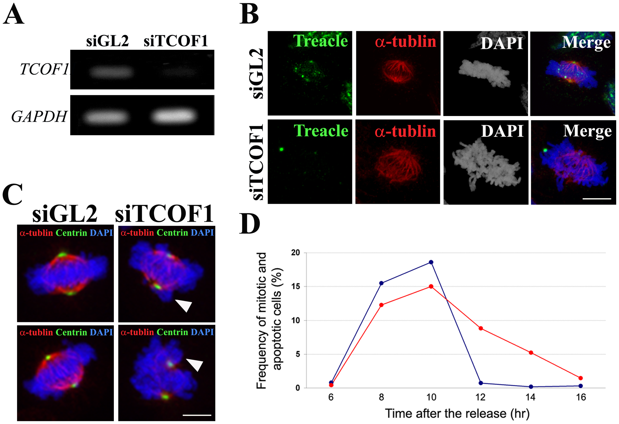 Essential function of Treacle in mitotic spindle formation and mitotic progression.