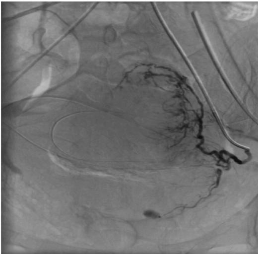 Obr. 1B. Cílená katetrizace arteria uterina vlevo s průkazem extravazátu