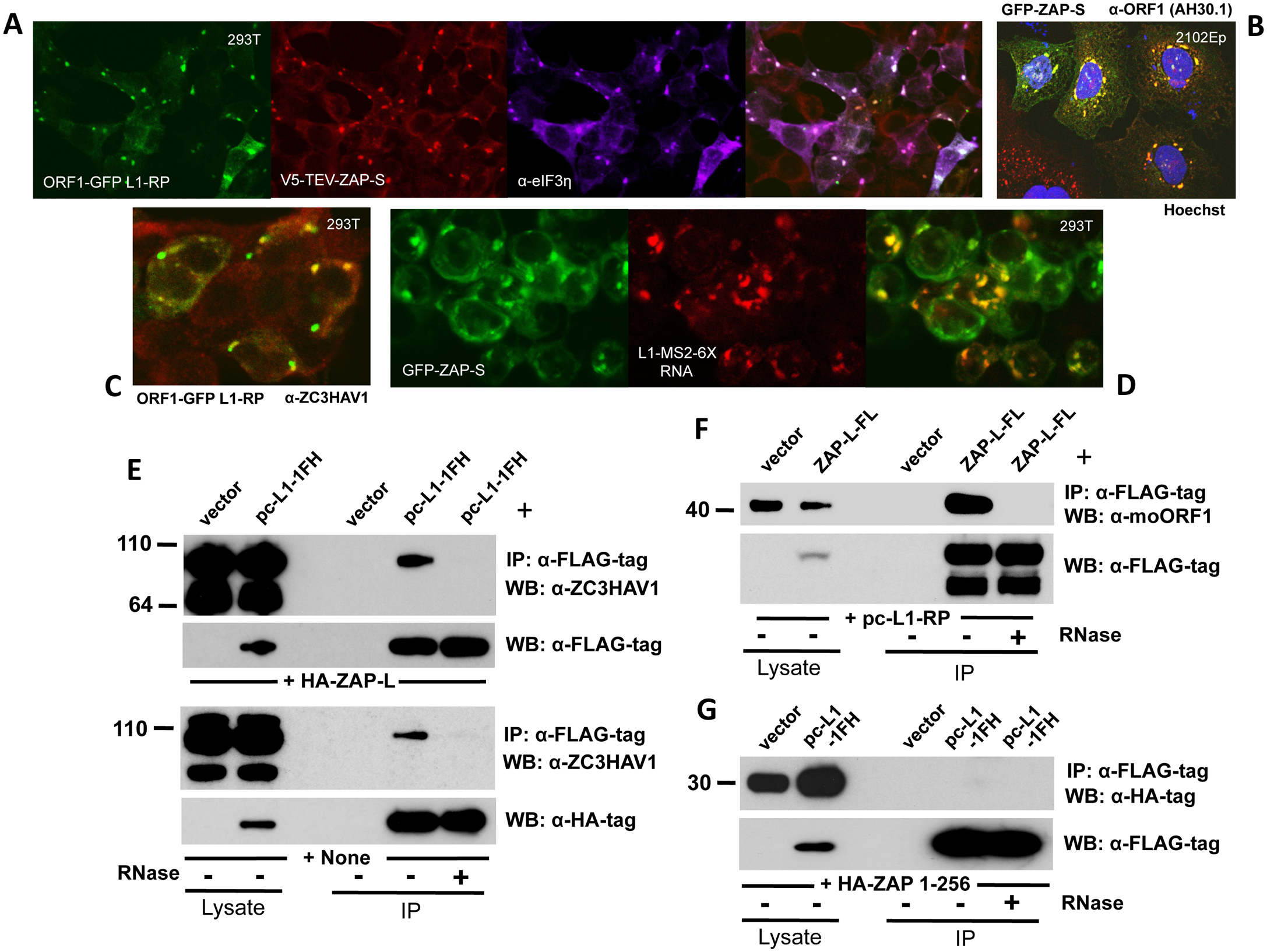 ZAP colocalizes with L1 ORF1 protein in cytoplasmic granules and interacts with its RNP in an RNA-dependent manner.