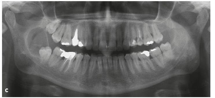Nálezy při CBCT (a, b) a na ortopantomogramu (c) pacientky s laterální folikulární cystou v okolí retinovaného zubu 48