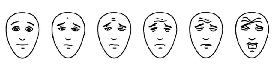 Hicksova škála mimiky [3]