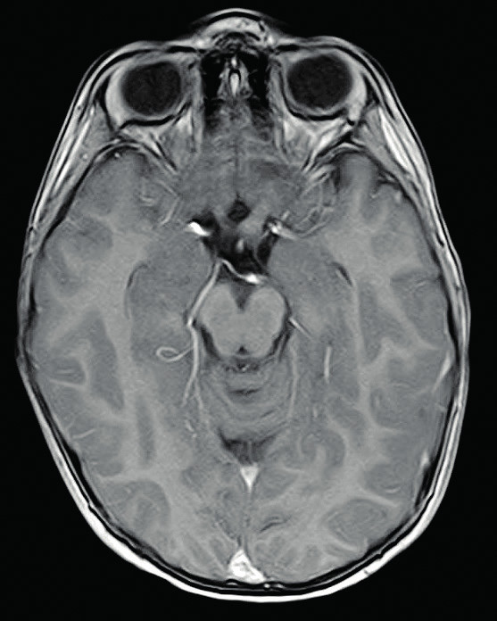 Gliom levého optického nervu, T1 postkontrastní zobrazení  Fig. 1. Glioma of the left optic nerve, T1 postcontrast-enhanced
