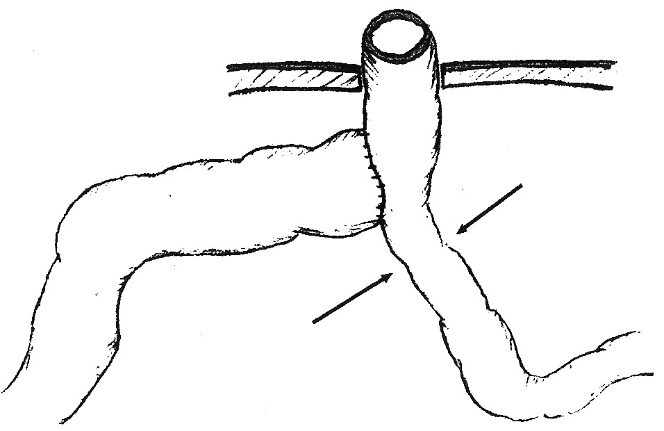 Bishop-Koopova Roux Y anastomóza s vyznačením limitujúceho lievika pasáže. Stomovaný je hypoplastický aborálny segment Fig. 5. The Bishop-Koop Roux Y anastomosis with the restricting narrowed part demarcated. The stoma procedure is performed on the hypoplastic aboral segment.