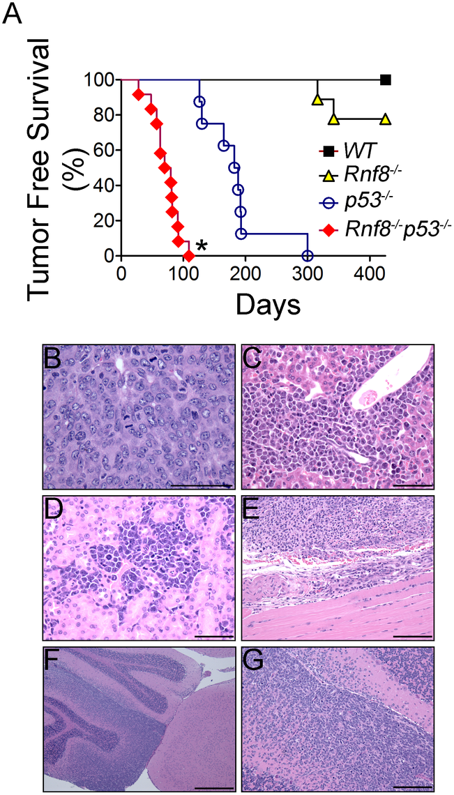 Cooperation of Rnf8 and p53 in the prevention of tumorigenesis.