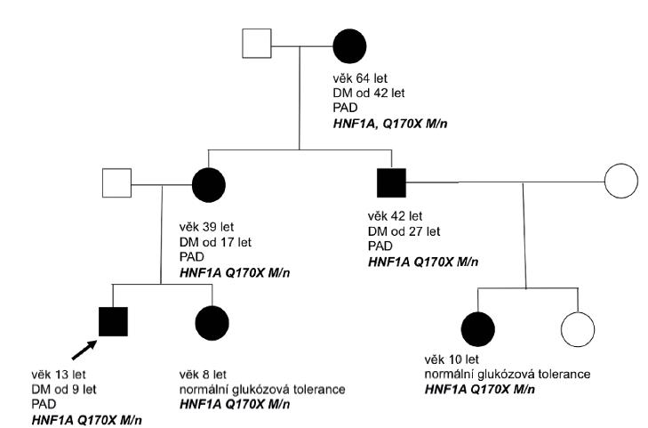 Rodokmen rodiny nesoucí mutaci v genu HNF1A. Cílené vyšetření potvrdilo mutaci v HNF1A genu u našeho probanda v 5 letech věku a k rozvoji diabetu došlo v 9 letech věku. Nositelkami mutace je mladší sestra pacienta a sestřenice, které mají zatím normální glukózovou toleranci.