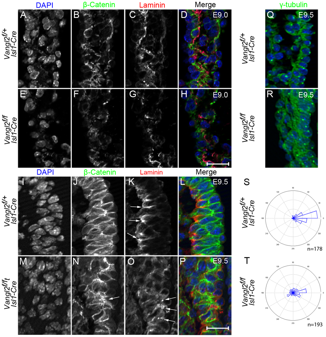 Disruption of epithelial organisation in the distal outflow tract of <i>Vangl2<sup>flox/flox</sup>; Isl1-Cre</i> embryos.