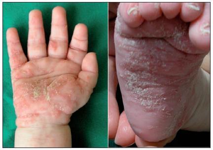 Scabies crustosa hyperkeratózy a chodbičky (Danilla T.)