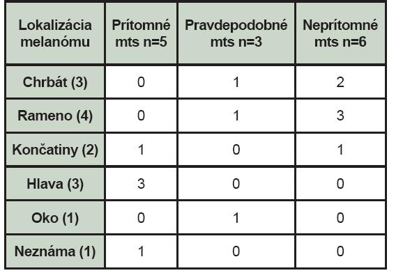 Nález celotelovej scintigrafie skeletu pri jednotlivých lokalizáciách melanómu (mts – kostné metastázy, n – počet pacientov).