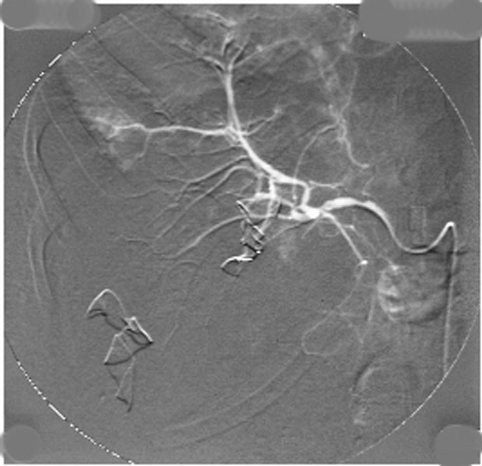 Angiografie jater s únikem kontrastní látky z pravé větve jaterní tepny