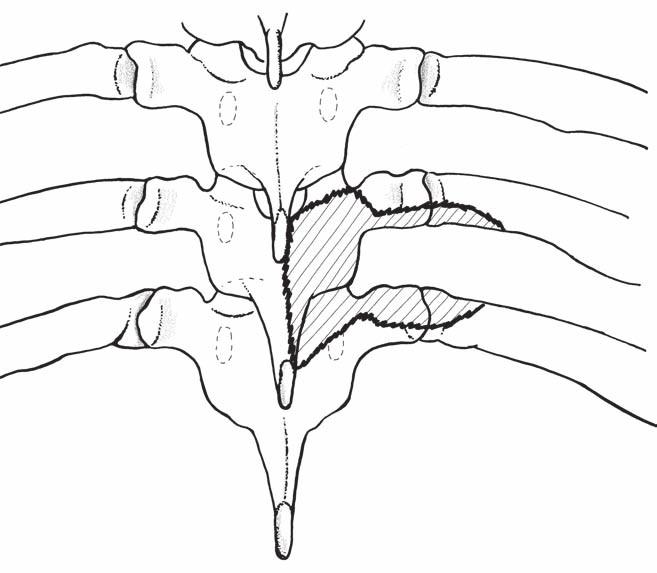 Nákres zadního operačního přístupu: hemilaminektomie s jednostranným odstraněním kloubu, částečná hemilaminektomie přilehlých oblouků, odstranění pediklu a částečná kostotransversektomie (předozadní pohled). Fig. 3. Drawing posterior surgical approach: hemilaminectomy with unilateral removing of the intervertebral joint, partial hemilaminectomy of the adjacent arches, and removing of the pedicle and partial costotransversectomy (antero-posterior view).