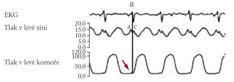 Enddiastolický tlak v levé komoře (LVEDP).