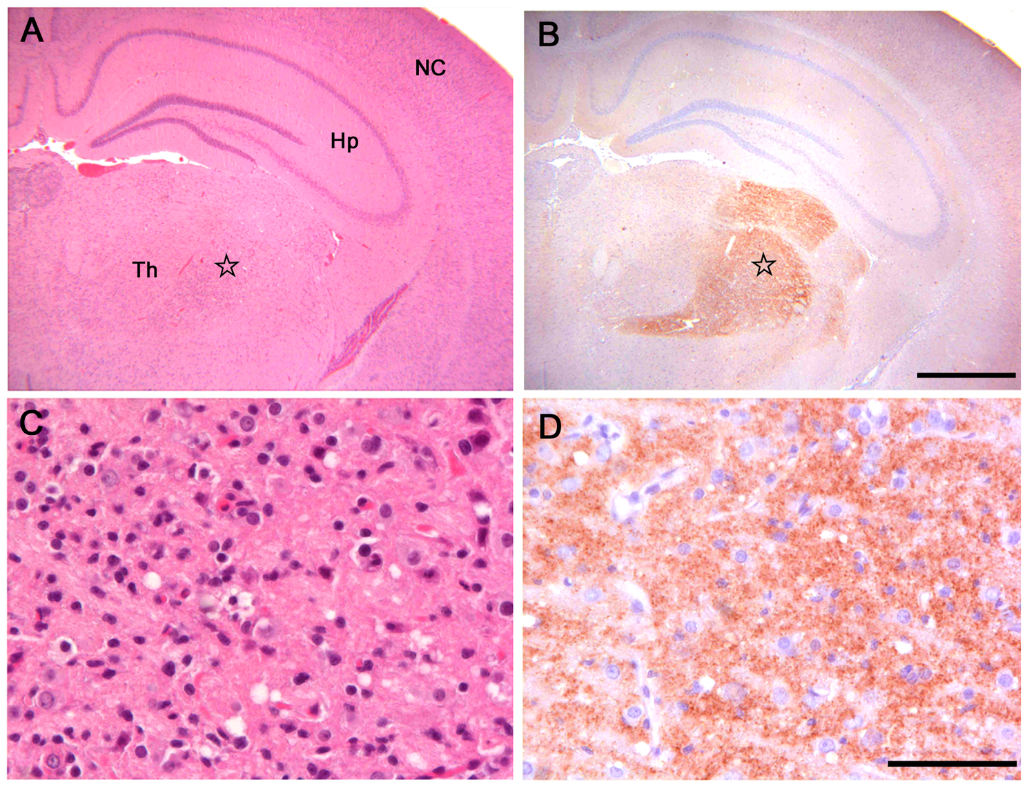 Histopathological and immunohistochemical analysis of Bv109I inoculated with Bv<sup>109I</sup>CWD.