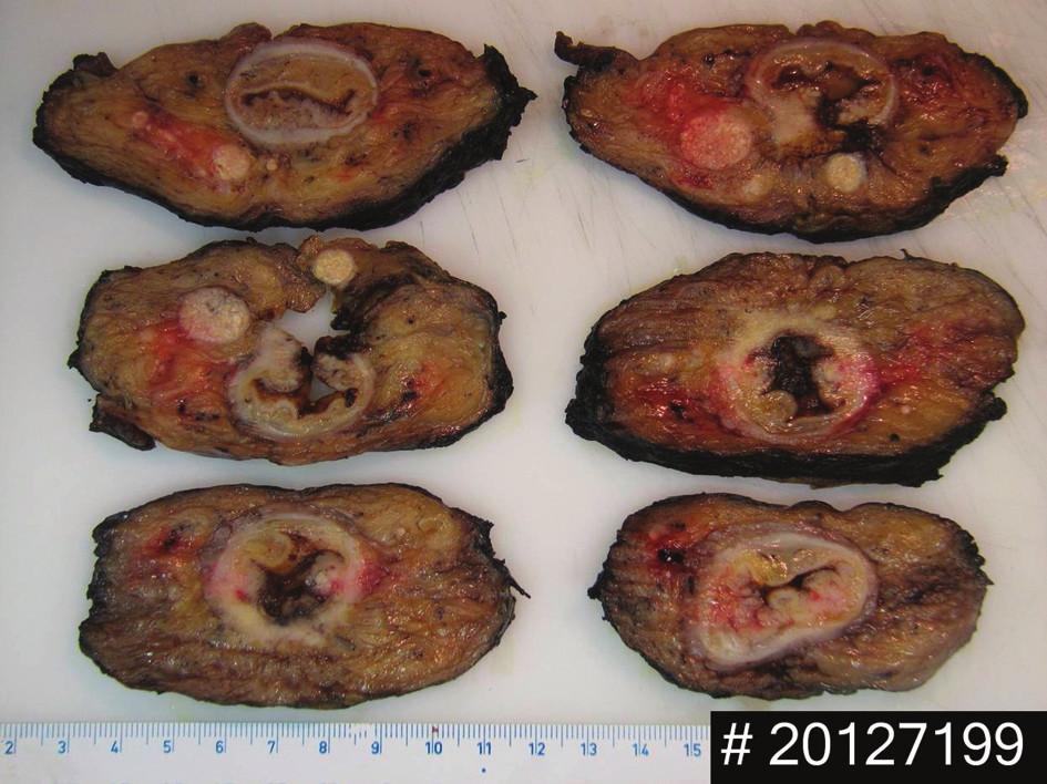 Příčné řezy resekátem rekta u muže ypT3, ypN2, ypM0 s negativním ypCRO, kvalita mezorektální excize: kompletní V mezorektu jsou patrna satelitní ložiska. Fig. 1: Resected specimen of rectum. Male patient ypT3, ypN2, ypM0 negative ypCRM. Complete mesorectal excision  Satelite tumors are present in the mesorectum.