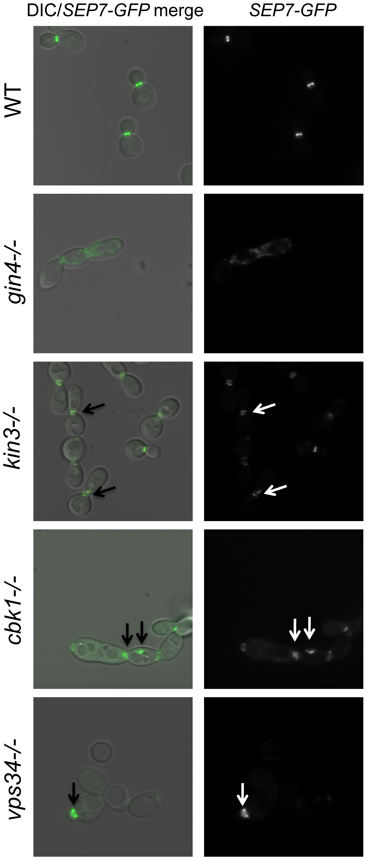 Septins are mislocalized in some PK mutant strains.