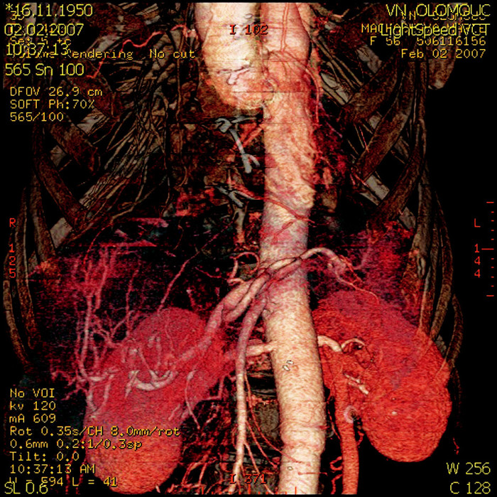 CT rekonstrukce břišní aorty – detail reimplantovaných tepen (truncus coeliacus, arteria mesenterica superior, obě renální tepny) Fig. 5. A CT reconstruction of the abdominal aorta – a detail view of the reimplanted arteries (truncus coeliacus, arteria mesenterica superior, both renal arteries)