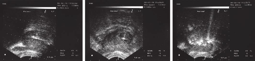 Vlevo: Potvrzení, že jehla (černá šipka) je zavedena do prostaty, podélné zobrazení. Uprostřed: Příčné zobrazení. Vpravo: Difuze hyperechogenního BoNT (černá šipka) v prostatě bezprostředně po aplikaci. (Chuang a Chancellor 2006)