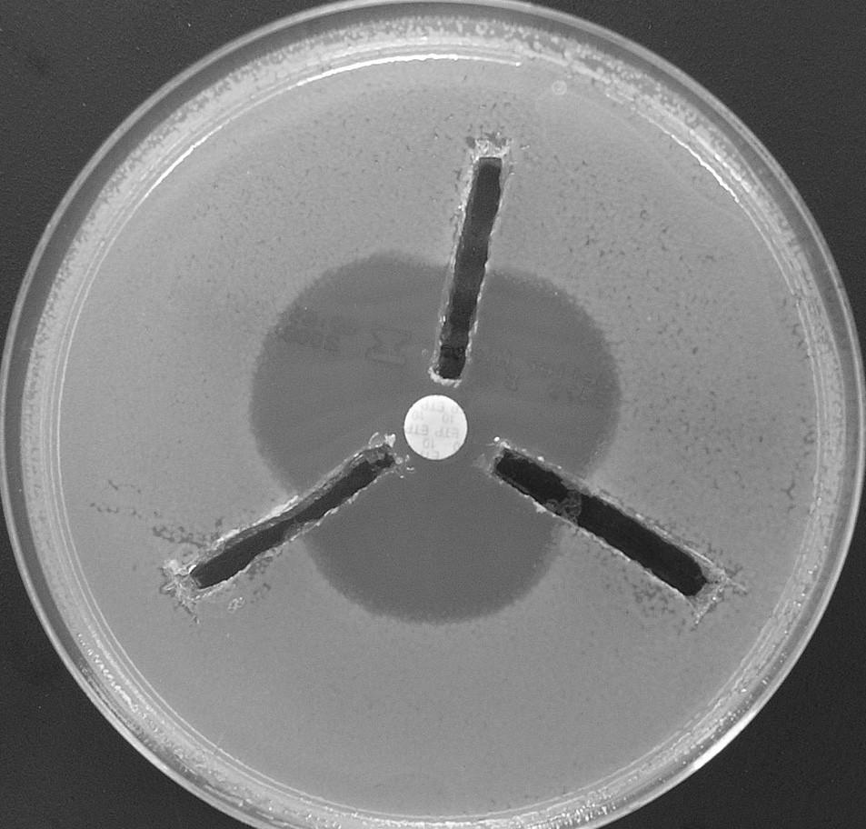 Průkaz karbapenemáz tzv. 3D metodou. Žlábky okolo disku s ertapenemem (umístěnemém ve středu plotny) jsou naplněny 150 μl bezbuněčného extraktu získaného sonikací. Všechny tři testované kmeny produkují karbapenemázu – dochází k deformaci původně kruhové inhibiční zóny Fig. 2. 3D test for the carbapenemase detection. 150 μl of cellfree extract is applied into groves around the disk with erthapenem. All three tested strains produced carbapenemase – deformation of inhibition zone can be observed