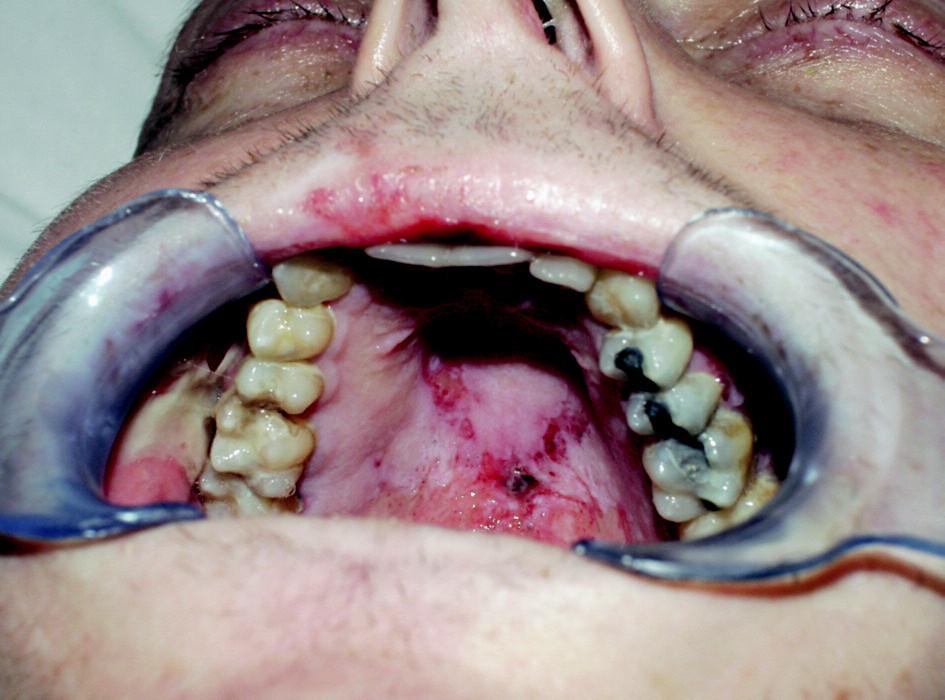 Slizniční změny na tvrdém patře u pacienta s akutní reakcí štěpu proti hostiteli (21. den po alogenní transplantaci).