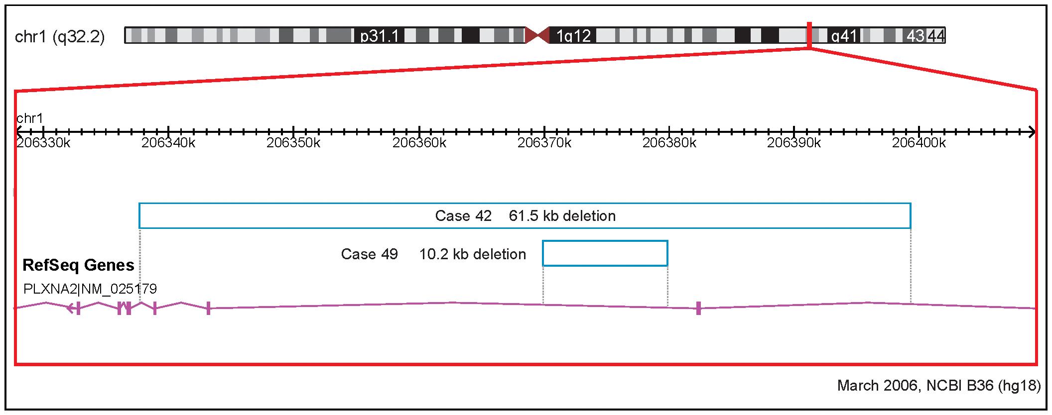 Rare CNVs overlapping novel candidate gene for tetralogy of Fallot: PLXNA2.