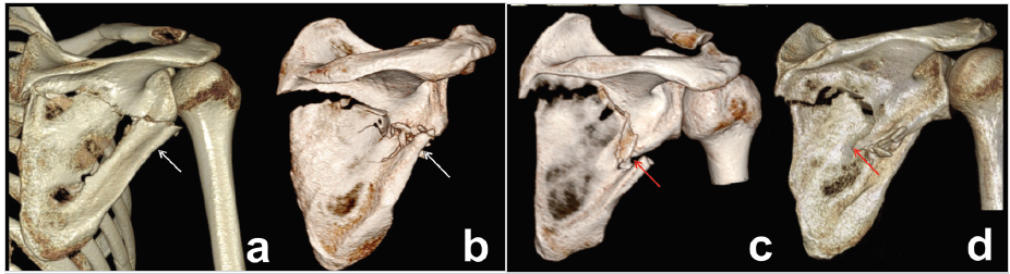 Types of two-part fractures of lateral pillar, different course of fracture line a – immediately below to inferior glenoid rim; b – at the level of origin of triceps long head tendon; c – through circumflex notch; d – on the border between superior and inferior half of lateral pillar. White arrow – circumflex notch, red arrow – spike of superior fragment. Notice of different types of fragment displacement (translation versus angulation with fragment overlap).