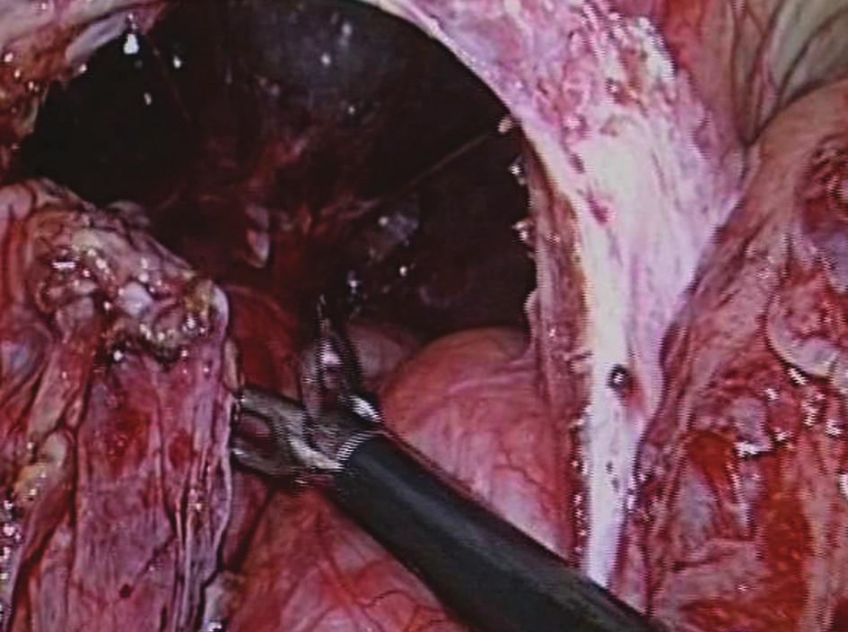 Resekce kýlního vaku – herniotomie Fig. 15: Resection of the hernial sac – herniotomy