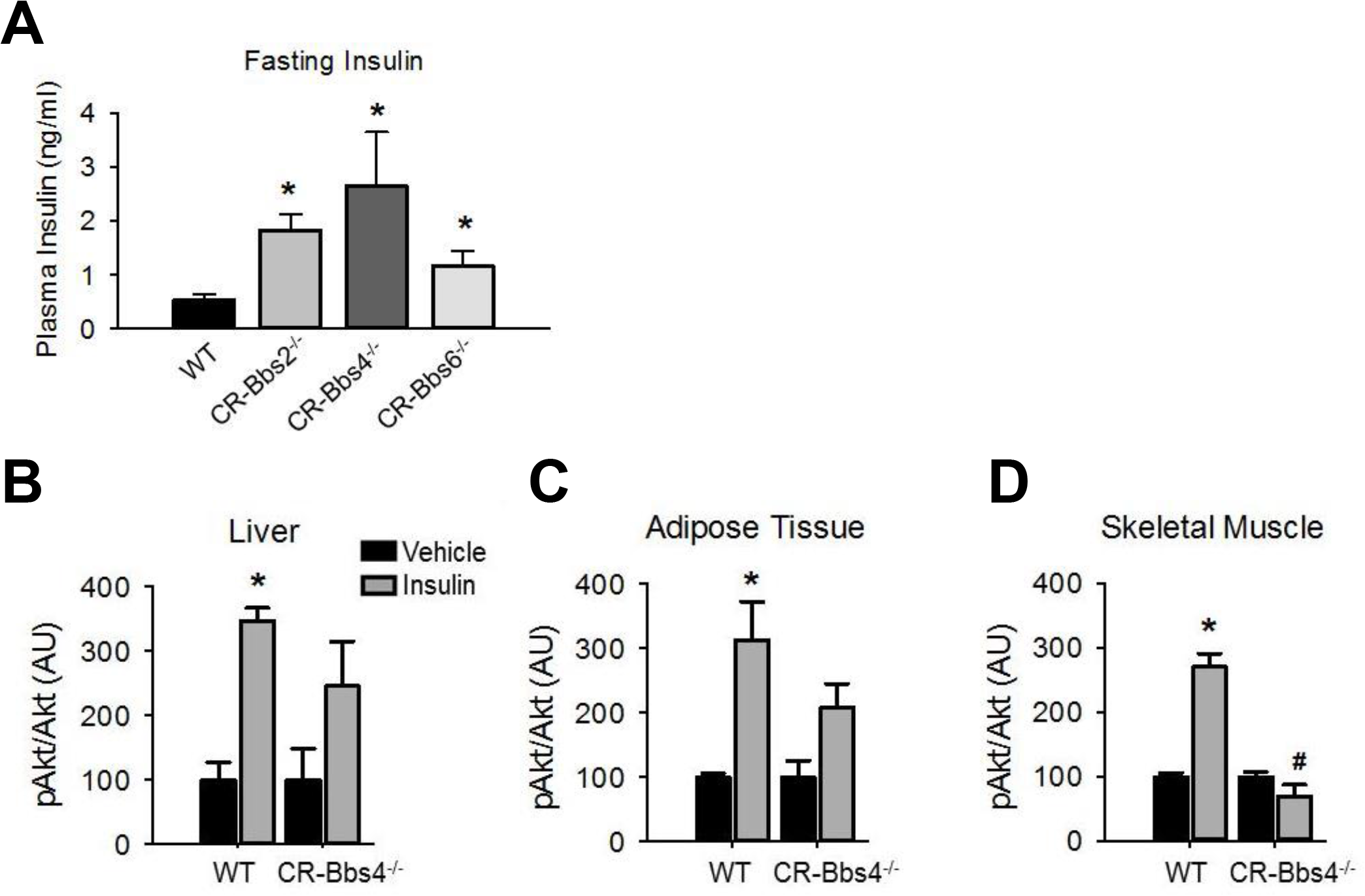 Alterations in insulin action and signaling in BBS mice is not related to obesity.