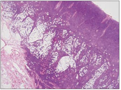 Akútna leukémia plazmocytoidných DCs, infiltrácia kože a podkožia (HE, 2krát).