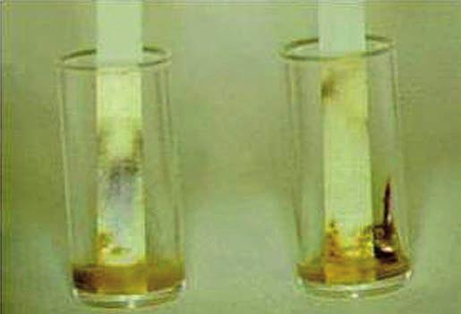 Vyšetřování albuminu ve smolce pomocí fenolftaleinové modři.