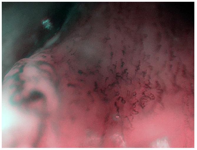 Zvětšovací NBI endoskopie – stejný nález jako na obr. 2. Detail patologické vaskularizace v okraji tumoru.