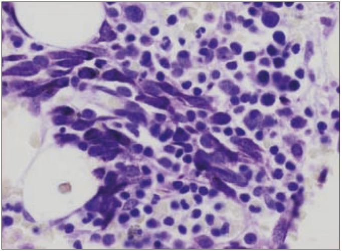 Atypické mastocyty v kostní dřeni. Barveno kresylovou violetí ke znázornění charakteristických granulí v cytoplazmě patologických mastocytů. Zvětšení 400krát. Snímek MUDr. Leoš Křen, Ph.D.