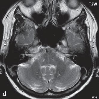 Symetrická ložiska nehomogenního signálu v T2 váženém obraze v globus pallidum bilaterálně (a, c), rozpadové produkty hemoglobinu jsou nejlépe detekované v T2 váženém obraze/FFE (b), nález je korelátem hemoragické nekrózy. Hypersignální ložiska v T2 váženém obraze v mozečku v oblasti nucleus dentatus (d).