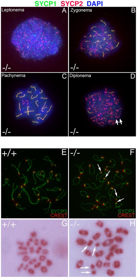 Formation of univalent chromosomes in <i>Chtf18</i><sup>−/−</sup> spermatocytes.