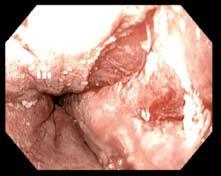 Ragáda vzniklá při první etapě RFA (HALO 360). Fig. 4. A mucosal break after the first session of RFA (HALO 360).