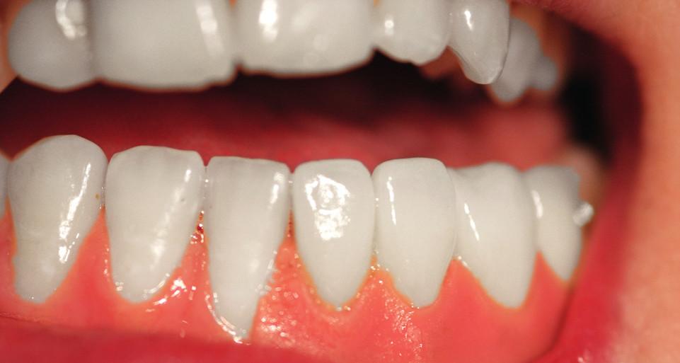 Stav v dutině ústní s epitézou