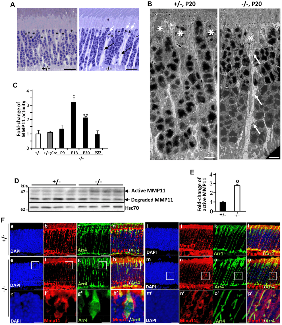 Activation of matrix metalloproteinase 11 (MMP11) upon ablation of <i>Ranbp2</i> in cone photoreceptors.